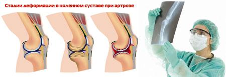 Лечение артрита коленного сустава в германии фравмы коленного сустава